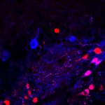 Dopaminergic cells in the olfactory bulb, revealed with genetic (DAT-tdT; red) and immuno (TH; blue) label